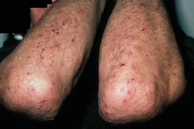 viêm da dạng herpes